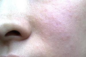 皮肤过敏有什么具体症状